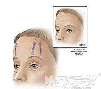 面部埋线提眉的优势和适应人群