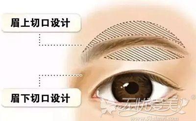 提眉手术的原理和优势