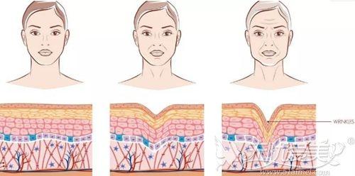 面部皮肤松弛下垂的程度