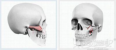 潘宝华做颧骨整形的优势