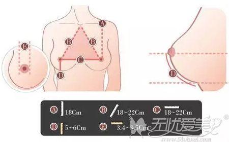 隆胸手术美学