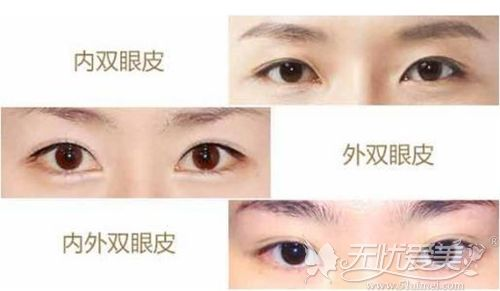 双眼皮的不同形态