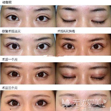 双眼皮过宽修复案例