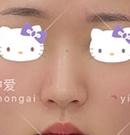 本来只想花钱做个膨体隆鼻,但考虑再三后还是做了鼻综合