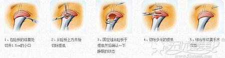 上睑提肌手术的原理和优势