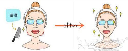 下颌骨长曲线截骨和普通下颌角手术的区别不只是截骨长短
