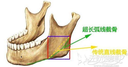 长曲线下颌角和普通下颌角手术区别