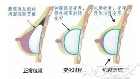 假体隆胸后包膜挛缩的表现