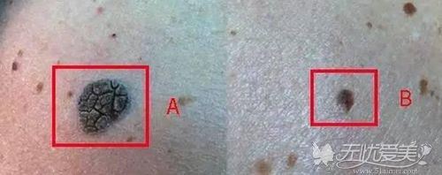角化斑图片