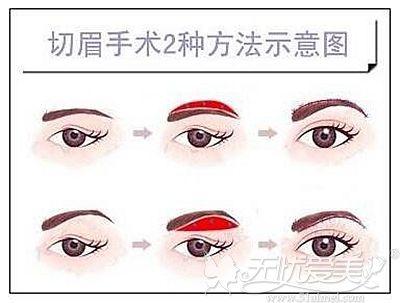提眉手术的两种手术方法
