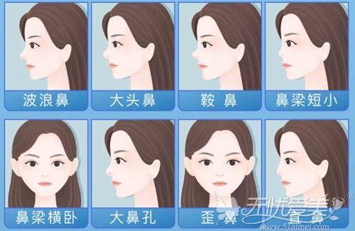 鼻综合手术可以改善的鼻型