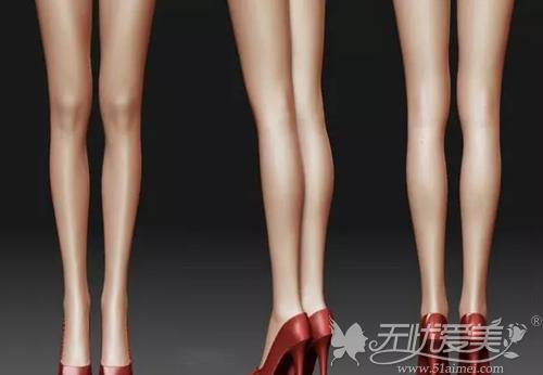 很多妹子会选择做腿部吸脂手术来瘦腿