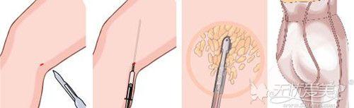 大腿抽脂手术过程