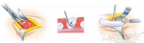 肋骨隆鼻的手术过程