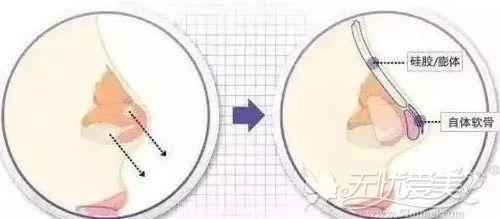 半肋骨隆鼻的手术效果