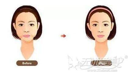 吸脂术后嘴角两坨肉需要修复