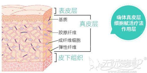 注射嗨体去颈纹的层次