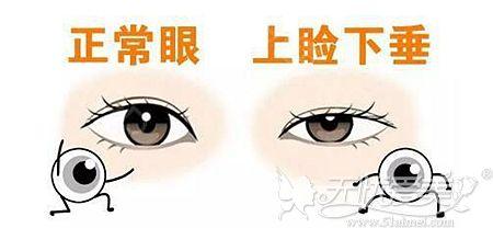 正常眼和上睑下垂的区别