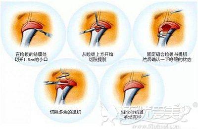 上睑提肌手术的原理
