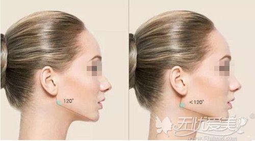 下颌骨宽造成的方脸