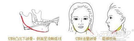 长曲线下颌角手术示意图