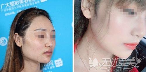 广州长曲线下颌角手术案例