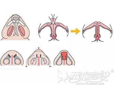 BSK半肋鼻部多项