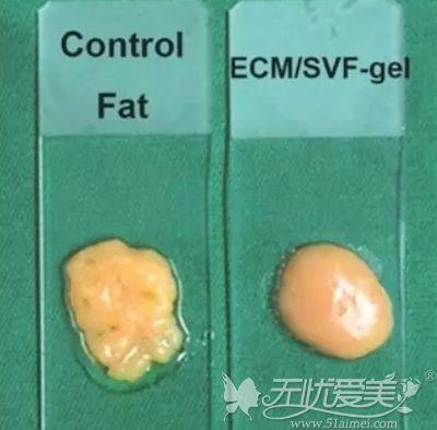 SVF-GEL脂肪移植术