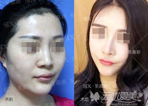 北京颧骨磨骨一年案例