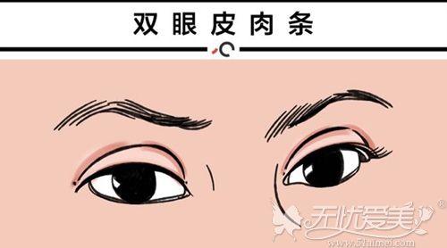 双眼皮术后肉条需要怎么修复