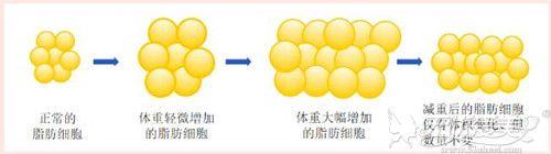 吸脂后脂肪细胞会减少