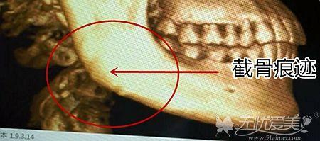 下颌角截骨手术的痕迹