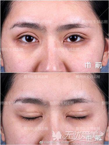 双眼皮修复前状态