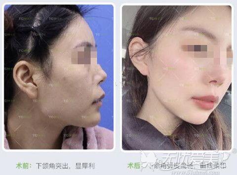 下颌角手术案例