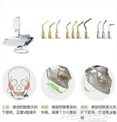 杭州时光整形下颌角手术优势