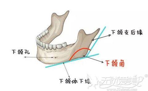 下颌角手术位置