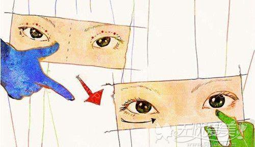 双眼皮修复手术要及早治疗