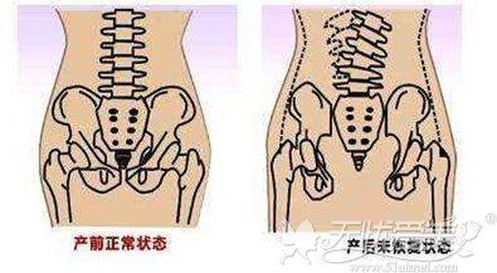 正常阴道和松弛的阴道对比