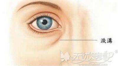 胶原蛋白注射泪沟图片