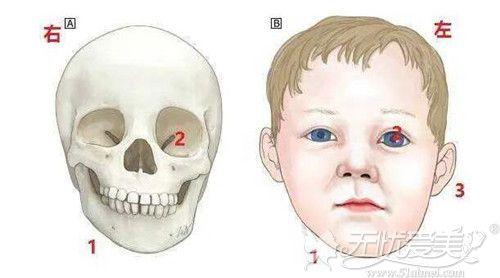 下颌角不对称