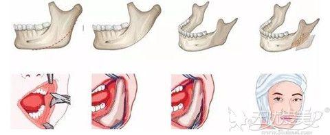 下颌角整形手术过程