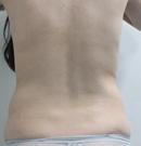 分享腰腹吸脂恢复过程图感觉腰腹吸脂三个月并没有反弹术前