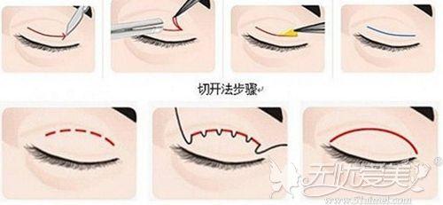 说双眼皮不要割第二次是因为二次修复成功率低还恢复慢?