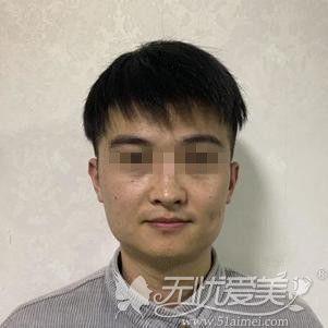 在郑州做下颌角手术前照片
