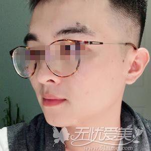 在郑州做下颌角手术后2个月对比