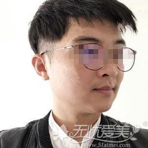 在郑州做下颌角手术后1个月效果
