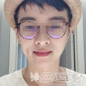 在郑州做下颌角手术后4个月