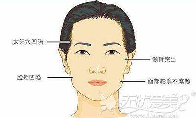 面部凹陷的真正原因