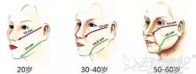 全脸脂肪填充后下垂的原因