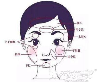 面部脂肪填充可以改善的部位